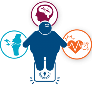 Obesity An On Going Epidemic Safecare Medical Center